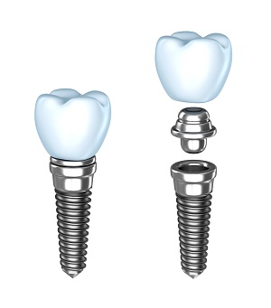 Implants Dentistry